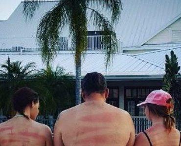 sunburn, sunburn fail, sunburn fails, funny sunburns, funny tans, funny tan, sun burn, sun burns, funny sun burns, worst sun burn, worst sunburn ever, worst sunburns, funny vacation, funny pic, funny pics, funny pictures, funny photos, funny vid, funny vids