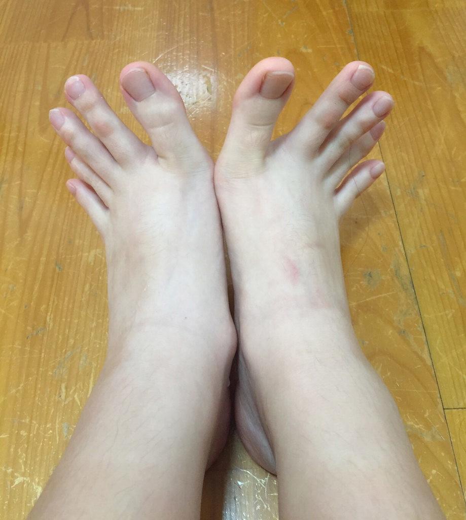 toes look like fingers, creepy toes, weird toes, toes like fingers, finger toes, weird feet, creepy feet, feet look like hands, weird stuff, weird shit, creepy stuff, creepy shit, creepy, weird, toes that look like fingers