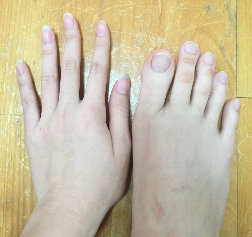 Pictures of womens toes
