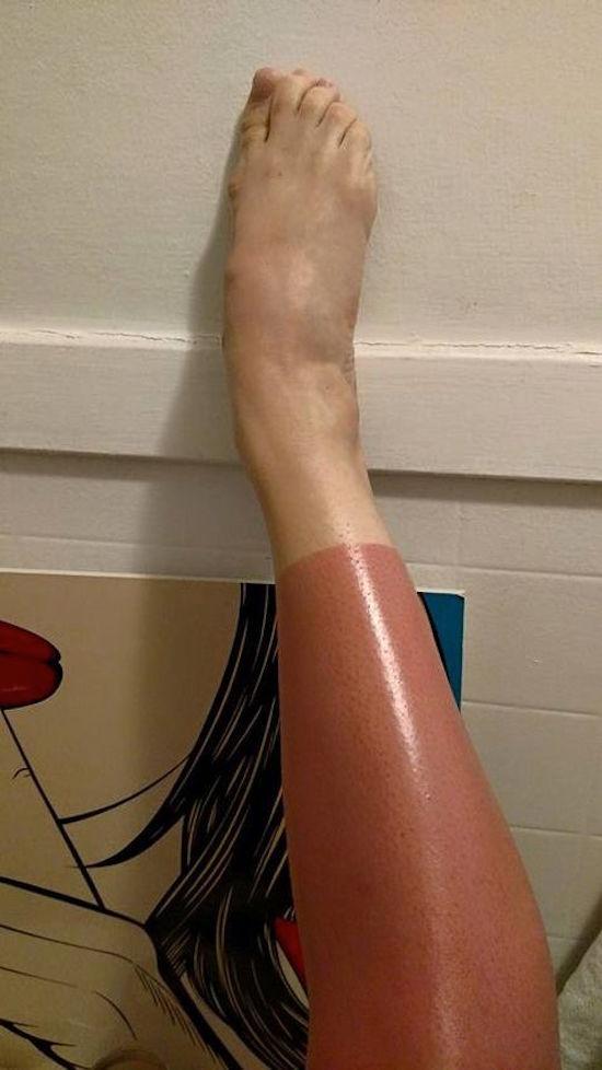 sunburns, sunburn, worst sunburns ever, worst sunburn, bad sunburn, bad sunburns, worst sunburns, painful sunburn, no sunscreen, use sunscreen, sunburn fail, sunburn fails, sunscreen fails, sunscreen fail