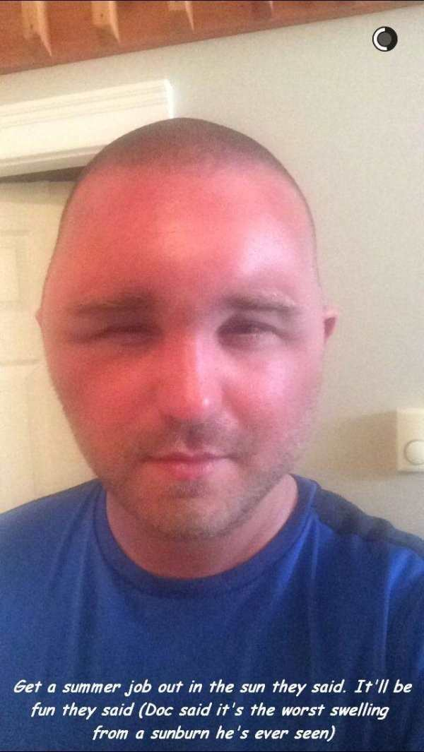 hilarious picture of sunburn swelling on man's head