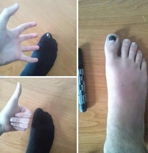 hole in sock color toe black, life hack, best funny pictures, funny pics, funny photos, funny pictures, funny vids, the best funny pictures, really funny photos, funny photos of animals, funny photos 2016, funny photos 2017, funny photos 2018, funny photos 2019, funny pics 2016, funny pics 2017, funny pics 2018, funny pics 2019, funny pictures 2016, funny pictures 2017, funny pictures 2018, funny pictures 2019, funniest pics 2016, funniest pics 2017, funniest pics 2018, funniest pics 2019, funniest pictures 2016, funniest pictures 2017, funniest pictures 2018, funniest pictures 2019, funniest photos 2016, funniest photos 2017, funniest photos 2018, funniest photos 2019, where to find funny pictures, funny pictures which made everyone laugh, where funny pictures, where to download funny pictures, where to find funny pictures with captions, where to get funny pictures for instagram, where to find funny pictures to share, where to find funny pictures to share on facebook, where to see funny pictures, funny pictures for instagram, funny pictures for facebook, funny pictures for memes, funny pictures for wallpaper, funny pictures for him, funny pictures for her, funny pictures for friends, funny pictures for snapchat, funny pictures like uberhumor, funny pictures like 9gag, funny pictures like facebook, funny pictures like, funny pictures like ifunny, funny stuff like pictures, funny pictures to text, funny pictures to photoshop, funny pictures to send, funny pictures to caption, funny pictures to post, funny pictures to make someone feel better, funny pictures to put on facebook, funny pictures to make you laugh, funny pictures to make you smile, funny pictures to brighten your day, funny pictures to brighten someone's day, funny pictures with words, funny pictures with no words, funny pictures without captions, funny pictures with jokes, funny pictures with dogs, funny pictures with cats, funny pictures without words, funny pictures without text, where can I find funny photos, best photos ever, best photo ever,