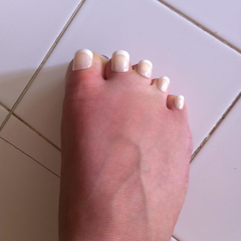 what appear to be very short toes with toenails cursed image, what appear to be very short toes with toenails cursed picture, what appear to be very short toes with toenails cursed pic, cursed images, cursed image meme, r/cursed images, rcursed images, r cursed images, weird images, random images, edgy cursed images