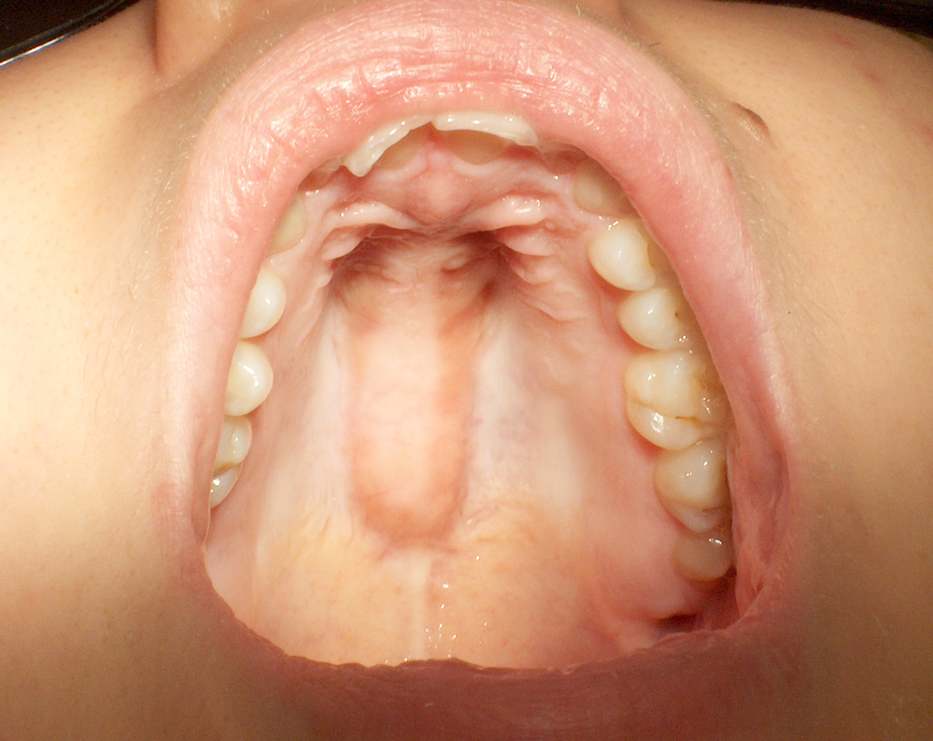 Inside of mouth with a torus palatinus