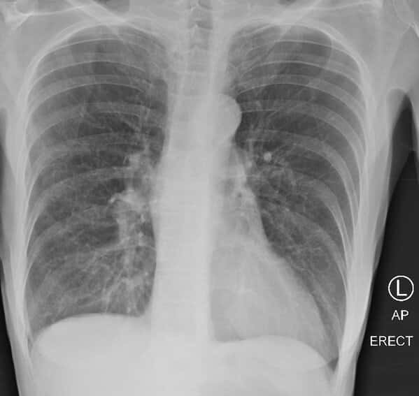 Post covid lungs and smokers lungs, lung x-rays reveal post-covid lung, smoking vs covid x-rays, doctor on twitter tweets about covid, lungs, news